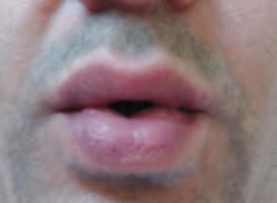 half-pucker
